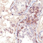 Formalin-fixed, paraffin-embedded human Testis stained with MAGE-1 Monoclonal Antibody (MA454).