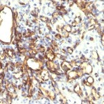 Formalin-fixed, paraffin-embedded human Angiosarcoma stained with Podocalyxin Monoclonal Antibody (2A4).