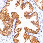Formalin-fixed, paraffin-embedded human Prostate Carcinoma stained with ODC-1 Monoclonal Antibody (ODC1/485)