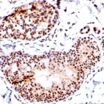 Formalin-fixed, paraffin-embedded human Breast Carcinoma stained with SUMO-1 Monoclonal Antibody (SM1/495)