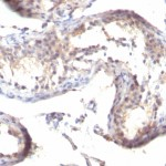 Formalin-fixed, paraffin-embedded human Testicular Carcinoma Stained with TGF alpha Monoclonal Antibody (MF9)