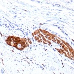 Formalin-fixed, paraffin-embedded human Colon Ganglion stained with CD56 Monoclonal Antibody (123C3.D5   123A8)
