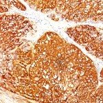 Formalin-fixed, paraffin-embedded human Melanoma stained with Melanoma Marker Monoclonal Antibody (A103   T311   HMB45).