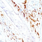 Formalin-fixed, paraffin-embedded human Skin stained with CD1a Monoclonal Antibody (O10 C1A/711).