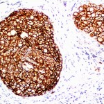 Formalin-fixed, paraffin-embedded human Breast Carcinoma stained with HER-2 Monoclonal Antibody (ERB2/776).