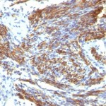 Formalin-fixed, paraffin-embedded human Uterus stained with Caldesmon Monoclonal Antibody (CALD1/820).