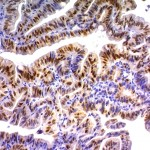 Formalin-fixed, paraffin-embedded human Colon Carcinoma stained with p21 Monoclonal Antibody (DCS-60.2).