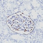 Formalin-fixed, paraffin-embedded human Fetal Kidney stained with WT1 Monoclonal Antibody (6F-H2).