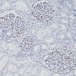 Formalin-fixed, paraffin-embedded human Fetal Kidney stained with WT1 Monoclonal Antibody (WT1/857).