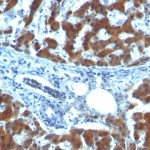 Formalin-fixed, paraffin-embedded human Hepatocellular Carcinoma stained with RBP1 (RBP/872)
