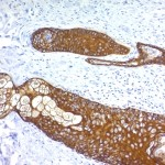 Formalin paraffin human Skin stained with Cytokeratin, HMW Monoclonal Antibody (KRTH/1076).