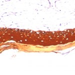 Formalin paraffin human Skin stained with Cytokeratin, LMW Monoclonal Antibody (KRTL/1077).