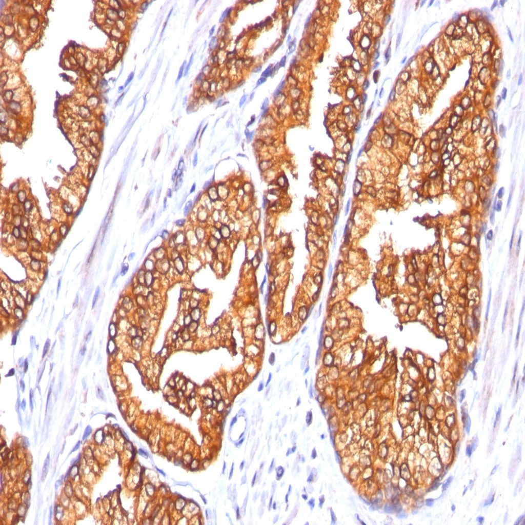 Prostate carcinoma stained with monoclonal anti-ODC-1 clone 485.