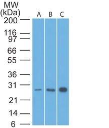 Monoclonal anti bcl 2 (8C8)