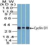 Monoclonal anti Cyclin D1 (DCS 6)