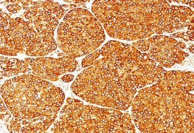 Monoclonal anti Tyrosinase (T311)