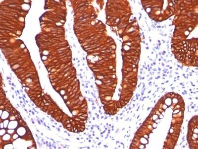 Monoclonal anti Cytokeratin 19 (A53-B/A2.26)