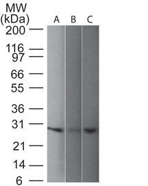 Monoclonal anti pgp9.5 (UCHL 1) (31A3)