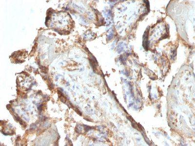 Monoclonal anti HCG intact (HCGab/52)