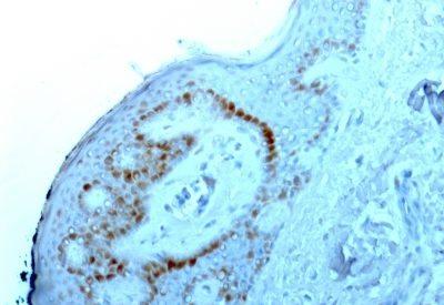 Monoclonal anti Nucleolar / Nucleoli (NM95)