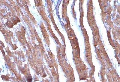Monoclonal anti Liver Canuliculi (HSA98)