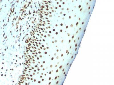 Monoclonal anti Human Nuclear Antigen (NM106)