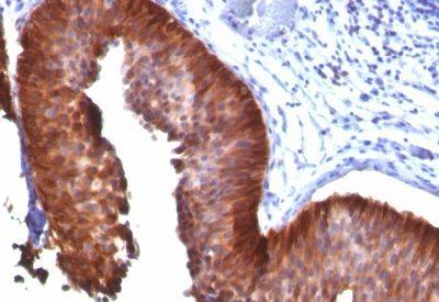Monoclonal anti Cytokeratin 17 (E3)