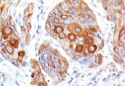 Monoclonal anti CD86 (BU63)