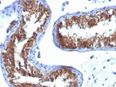 Monoclonal anti Major Vault Protein (MVP) (1014)