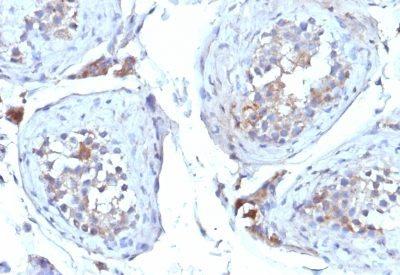 Monoclonal anti SHBG (Sex Hormone Binding Globulin) (SHBG/245)
