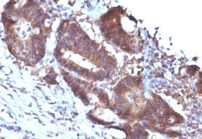 Monoclonal anti Transgelin / SM22 alpha (TAGLN/247)