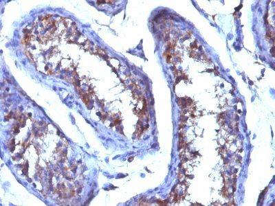 Monoclonal anti Testosterone (4E1G2)