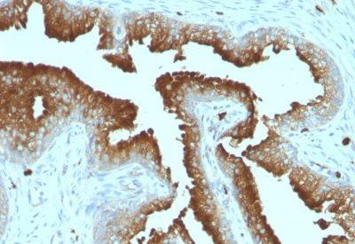 Monoclonal anti CD53 (161 2)