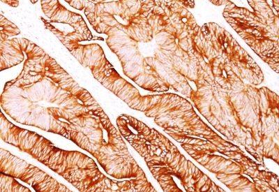 Monoclonal anti Cytokeratin 8 (H1)