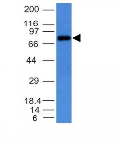 Monoclonal anti IgM Immunoglobulin (IM373)