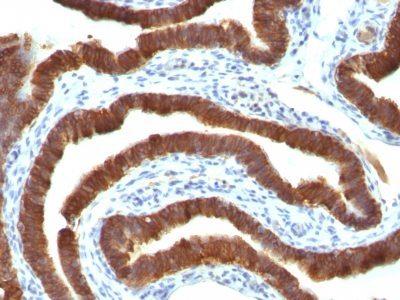 Monoclonal anti Cytokeratin 19 (Ks19.1)