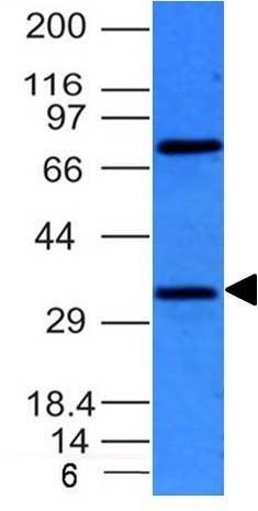Monoclonal anti BCL 10 (BL10/411)