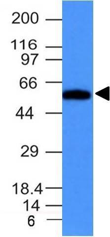 Monoclonal anti Fascin 1 (FSCN1/417)