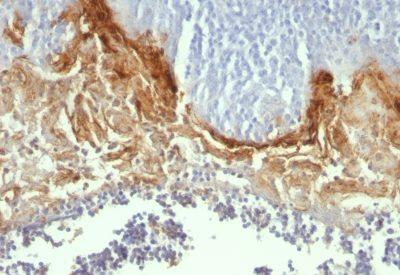 Monoclonal anti CD104 (UM A9)