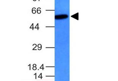 Monoclonal anti Vimentin (VM452)