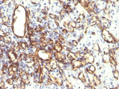 Monoclonal anti Podocalyxin (2A4)