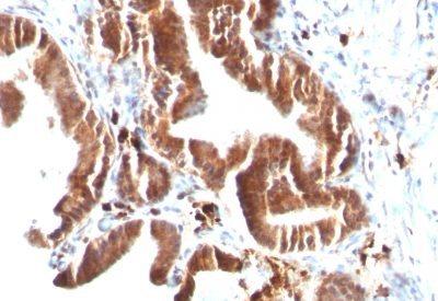 Monoclonal anti Topoisomerase I, MT (TOP1MT/488)