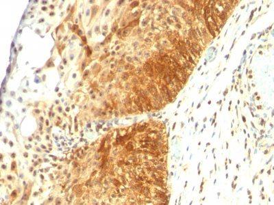 Monoclonal anti Cytokeratin 14 (LL002)