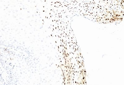 Monoclonal anti Human Papillomavirus 16 (HPV16) (CAMVIR 1)