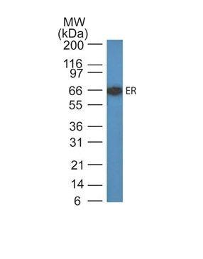 Monoclonal anti Estrogen Receptor (ER505)