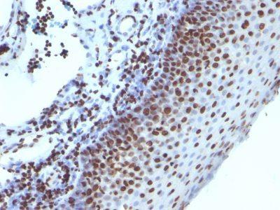 Monoclonal anti Histone H1 (1415-1)