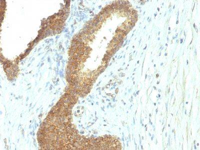 Monoclonal anti Alkaline Phosphatase (ALP/597)