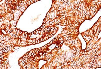 Monoclonal anti Cytokeratin 8 (TS1)