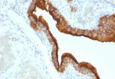 Monoclonal anti Mucin 1 / EMA / Episialin / CD227 (VU 2G7)