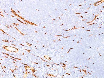 Monoclonal anti CD34 (QBEnd/10)